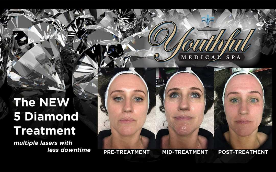 Announcing Our Signature 5 Diamond Treatment