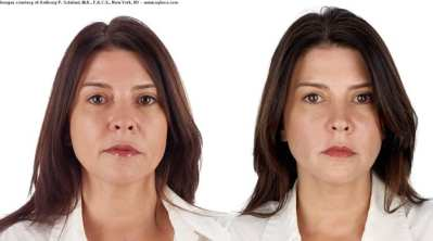 selphyl_before_after_results (5)