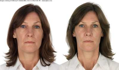 selphyl_before_after_results (6)