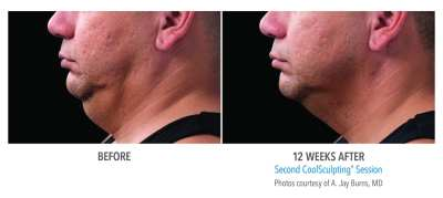 CoolSculpting Before and After 14