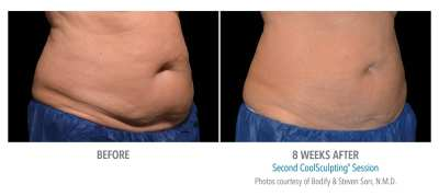 Coolsculpting Before and After 27