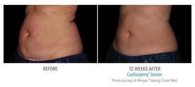 CoolSculpting Before and After 26