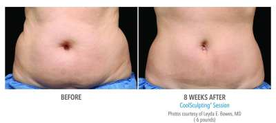 CoolSculpting Before and After 25
