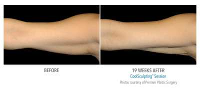 CoolSculpting Before and After 24