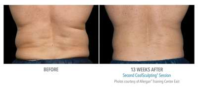 CoolSculpting Before and After 18