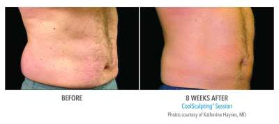 CoolSculpting Before and After 21