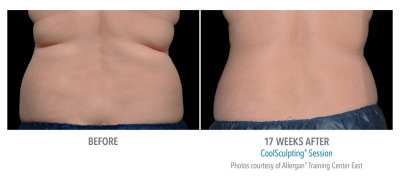CoolSculpting Before and After 20