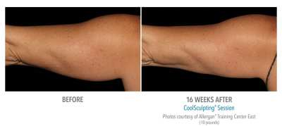 CoolSculpting Before and After 7