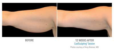 CoolSculpting Before and After 6