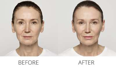 AQUAGOLD Before & After