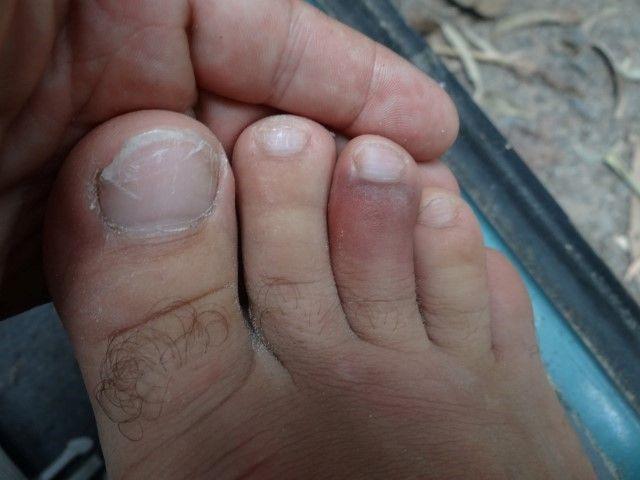 Australie- Queensland: Orteil cassé?