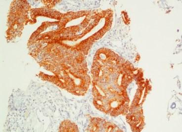 Καρκίνος προστάτη με πνευμονικές μεταστάσεις και υπερθερμία: Racemace 3+
