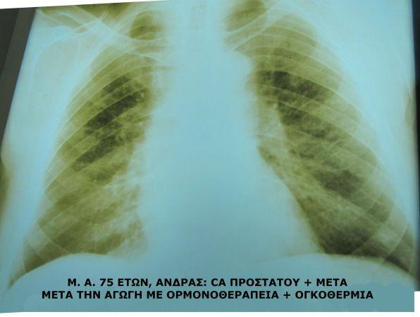 Εξαφάνιση των πνευμονικών μεταστάσεων μετά το πέρας της θεραπείας