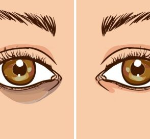 How To Get Rid Of Dark Circles Fast