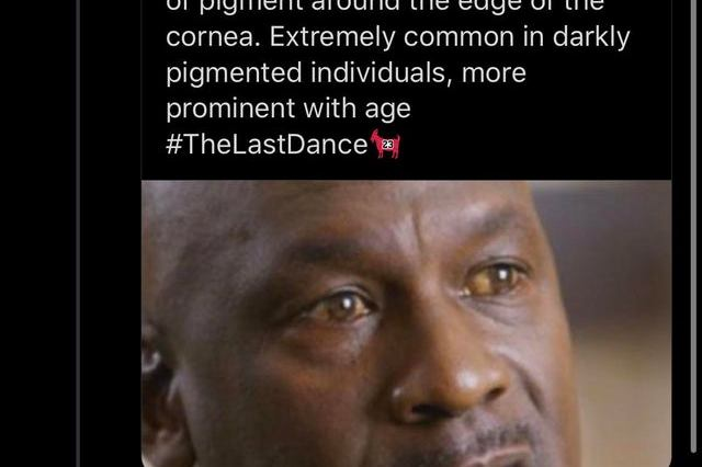 What's up with Michael Jordan's Red Eyes