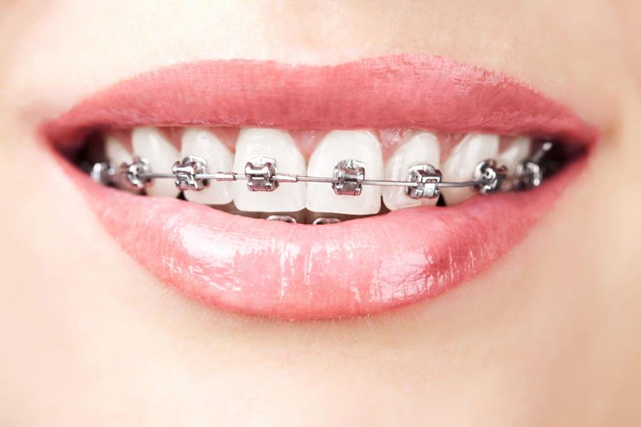 दाँतमा तार : कुन अवस्थामा आवश्यक हुन्छ ?