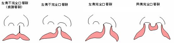 口唇裂・顎裂・口蓋裂