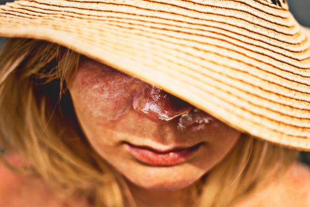 飲む日焼け止めは皮膚科処方、それとも市販で大丈夫?