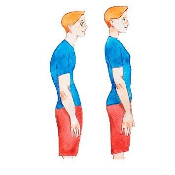 Read more about the article Діагностика сколіозу. Симптоми протрузії поперекового відділу хребта.
