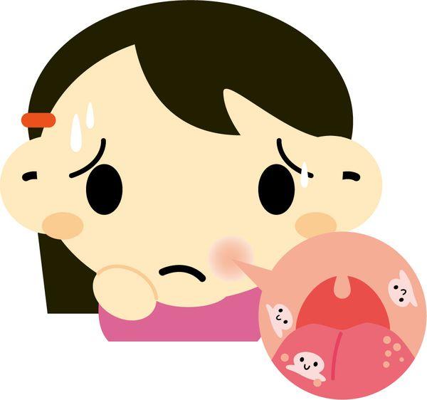 口内炎が舌の表面にできる