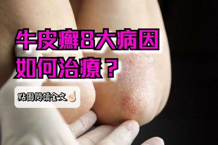 牛皮癬8大病因?又該如何治療?-台灣養生網