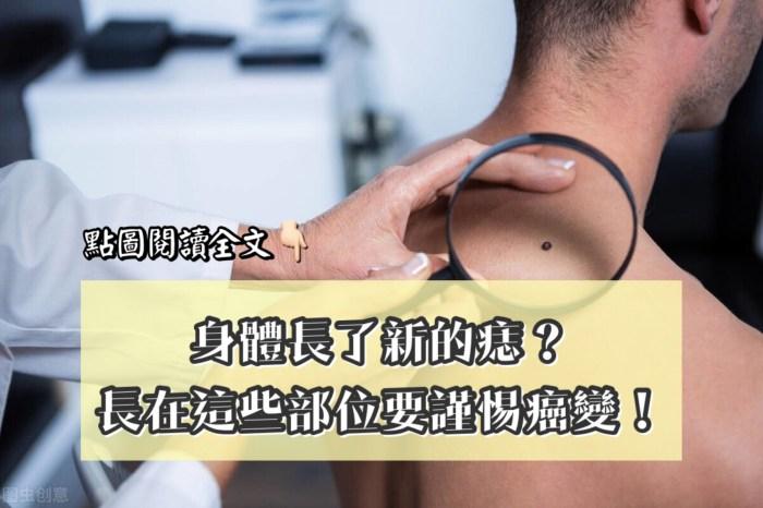 身體長了新的痣不重視?長在這些部位需警惕!-台灣養生網
