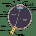 硝子体剥離(飛蚊症)の事と近況報告