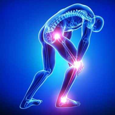 Image result for sciatica images