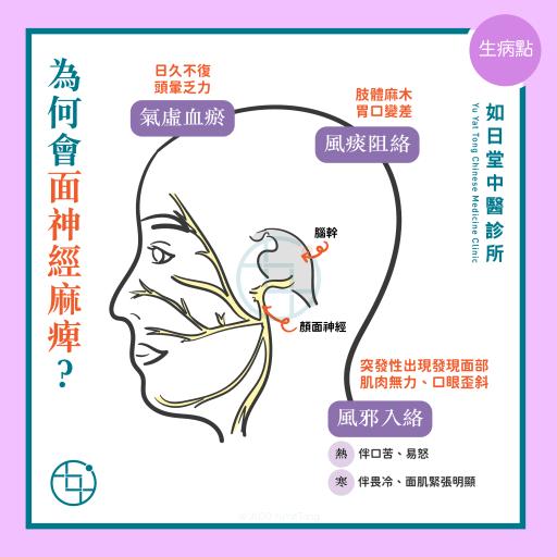 中醫 - 面神經麻痺(面癱)