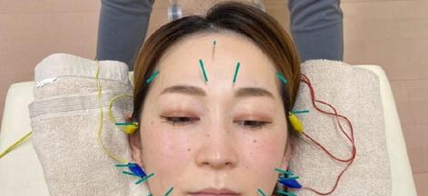 顔面への鍼治療