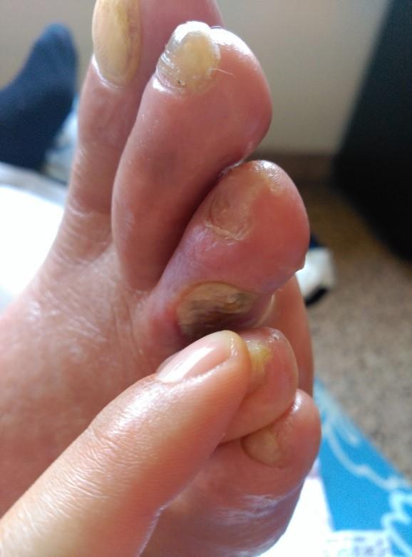gangrena después de la amputación del dedo del pie diabetes