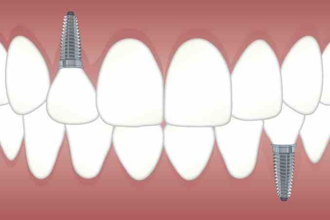 Zahnimplatate einsetzen
