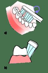 Zahnputztechnik für Kinder
