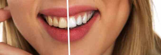 Zähne aufhellen mit Bleaching Gel