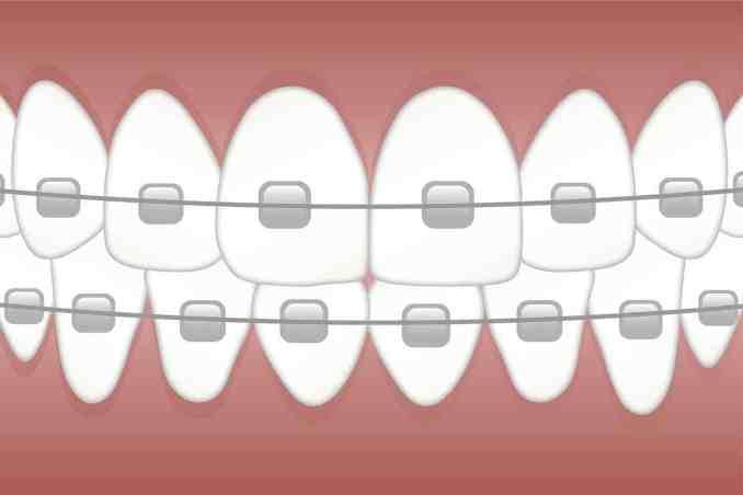 Retainer für gerade Zähne