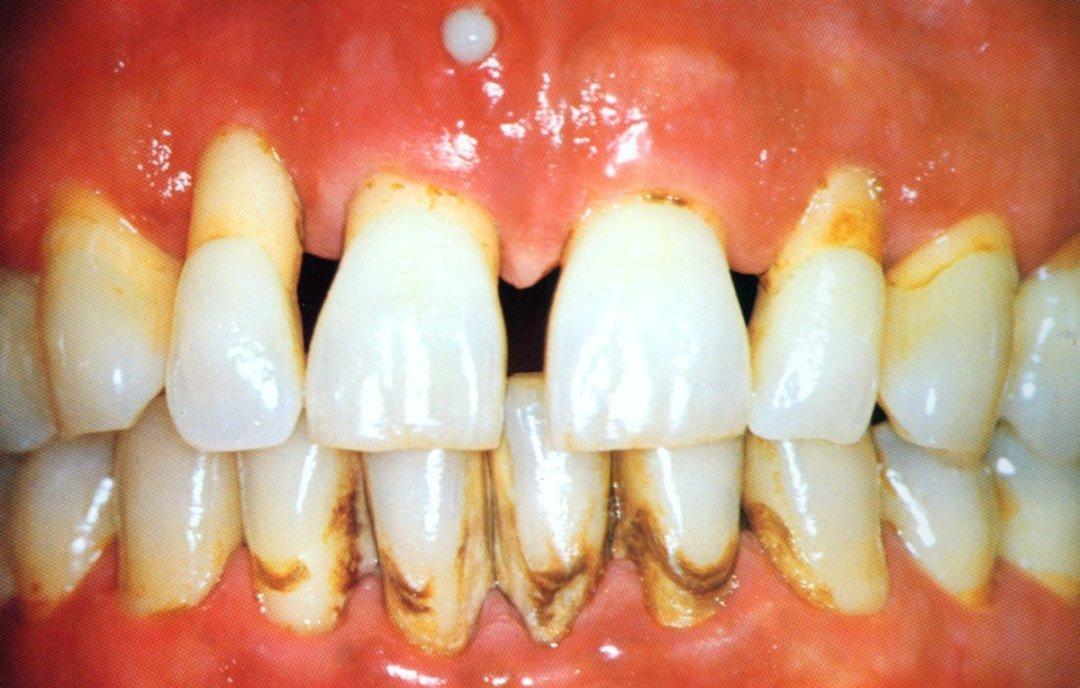 Zahnarzt Egon Müller Schiene