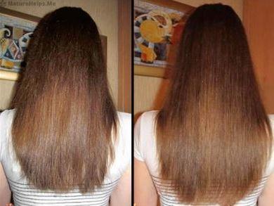 никотинова киселина за коса