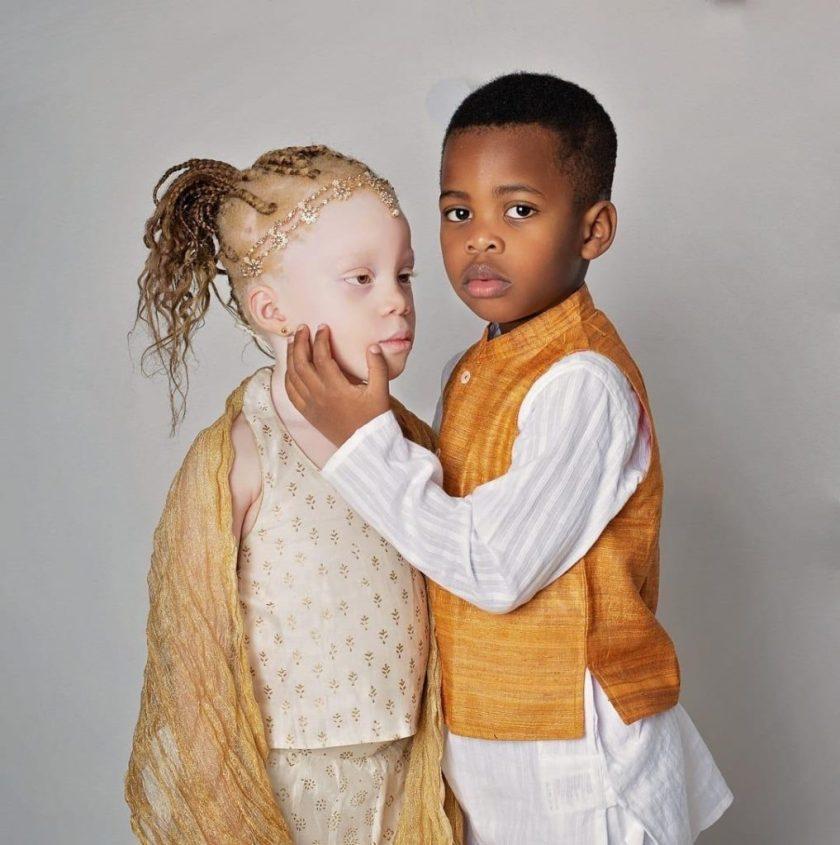 близнаци различен цвят