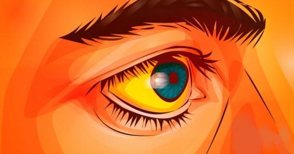 Чувствителна кожа и пожълтяване на очите