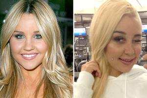 Amanda Bynes' Nose Job: Troubled Star Reveals She Had Plastic Surgery 1
