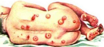 Периоды и стадии развития сифилиса, сифилитического ринита. Какие бывают стадии сифилиса и как они проявляются