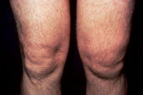 Причины избыточной жидкости в коленном суставе симптомы и лечение