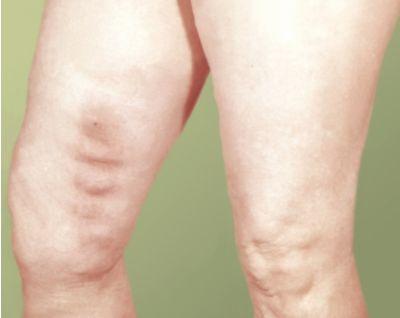 Ноют мышцы ноги выше колен спереди