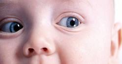 Отёк глаз у грудничка(отекают веки). Опухшие глаза у новорожденного – в чем причины и есть ли повод для беспокойства