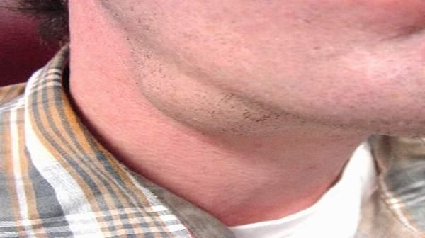 karcinom-pljuvacnih-zelijezda