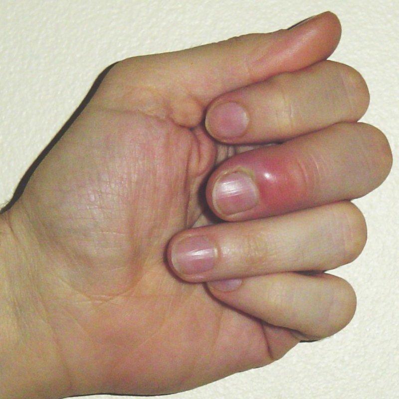 povrsinski-prist-na-prstu