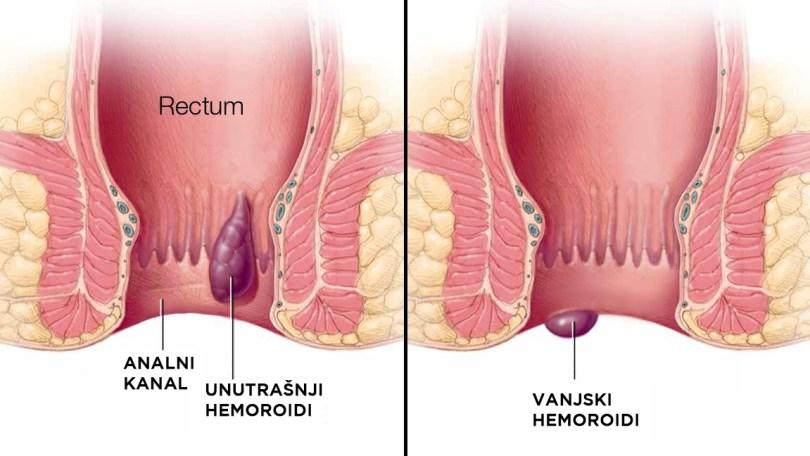 HEMOROIDI vanjski unutrašnji