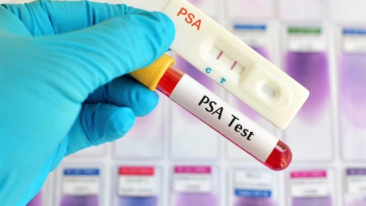 PSA test urolog