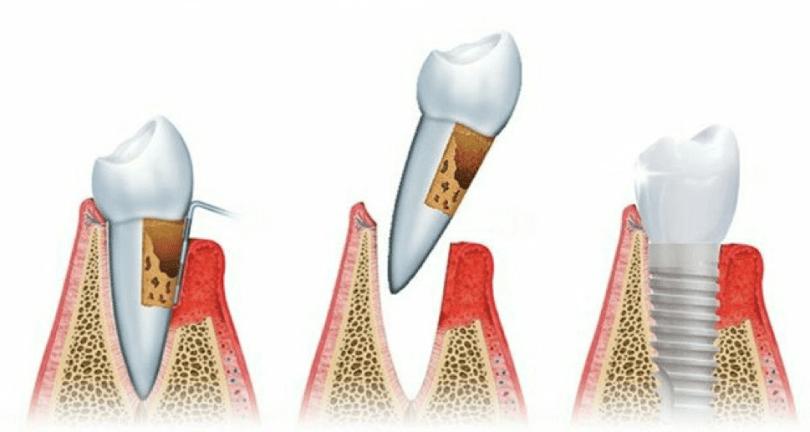 Vadjenje zuba prije ugradnje implantata