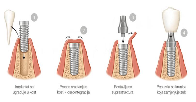Zubni implantat postavljanje 2